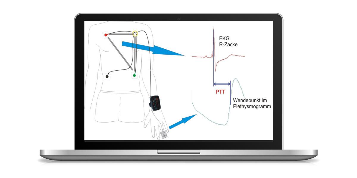 Berechnung der Pulstransitzeit (PTT) aus EKG und Fingerplethysmogramm