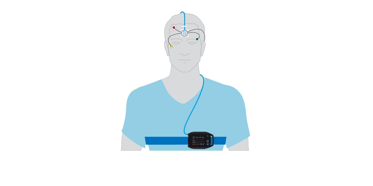 Applikation der EEG/EOG Kombi Elektrode am Patienten, SOMNOtouch RESP zur vereinfachten Schlafstadienbestimmung, Polygraphie, ambulant,