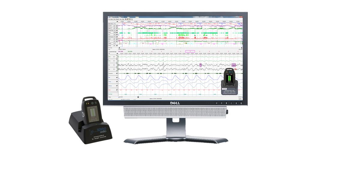 Rohdaten einer Messung mit der SOMNOtouch™ RESP und der EEG/EOG Kombielektrode zur vereinfachten Schlafstadienbestimmung, Polygraphie,