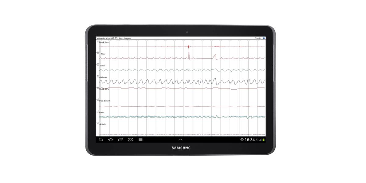SOMNOtouch RESP vereinfachte Schlafstadienbestimmung, Signalkontrolle auf Tablet PC, Android App, hochauflösend, direkte Signalkontrolle am Patientenbett, bluetooth