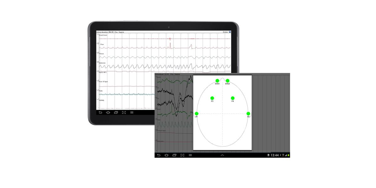 SOMNO HD Eco, Signalcheck über Tablet PC oder Smartphone, am Patientenbett, kontinuierliche Impedanzkontrolle, Polysomnographie, PSG, kabellos, bluetooth, EEG, Routine, Stationär,