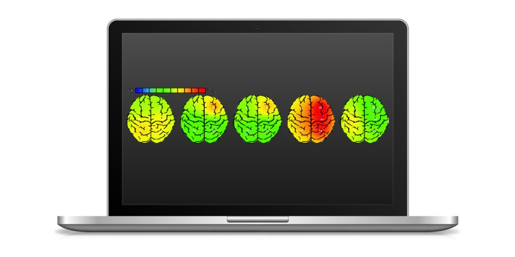 With the powerful DOMINO software - brain mapping is possible.